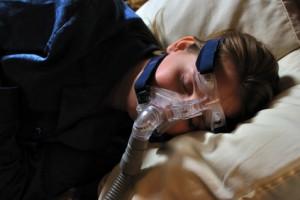 Traitement de l'apnée obstructive du sommeil